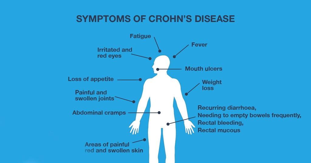 Crohn's Disease Symptoms (CBD helps)