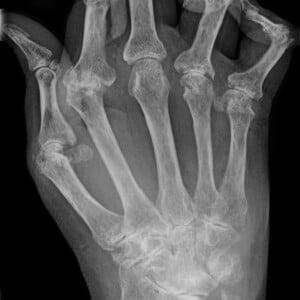 Arthritis - cbd joint pain